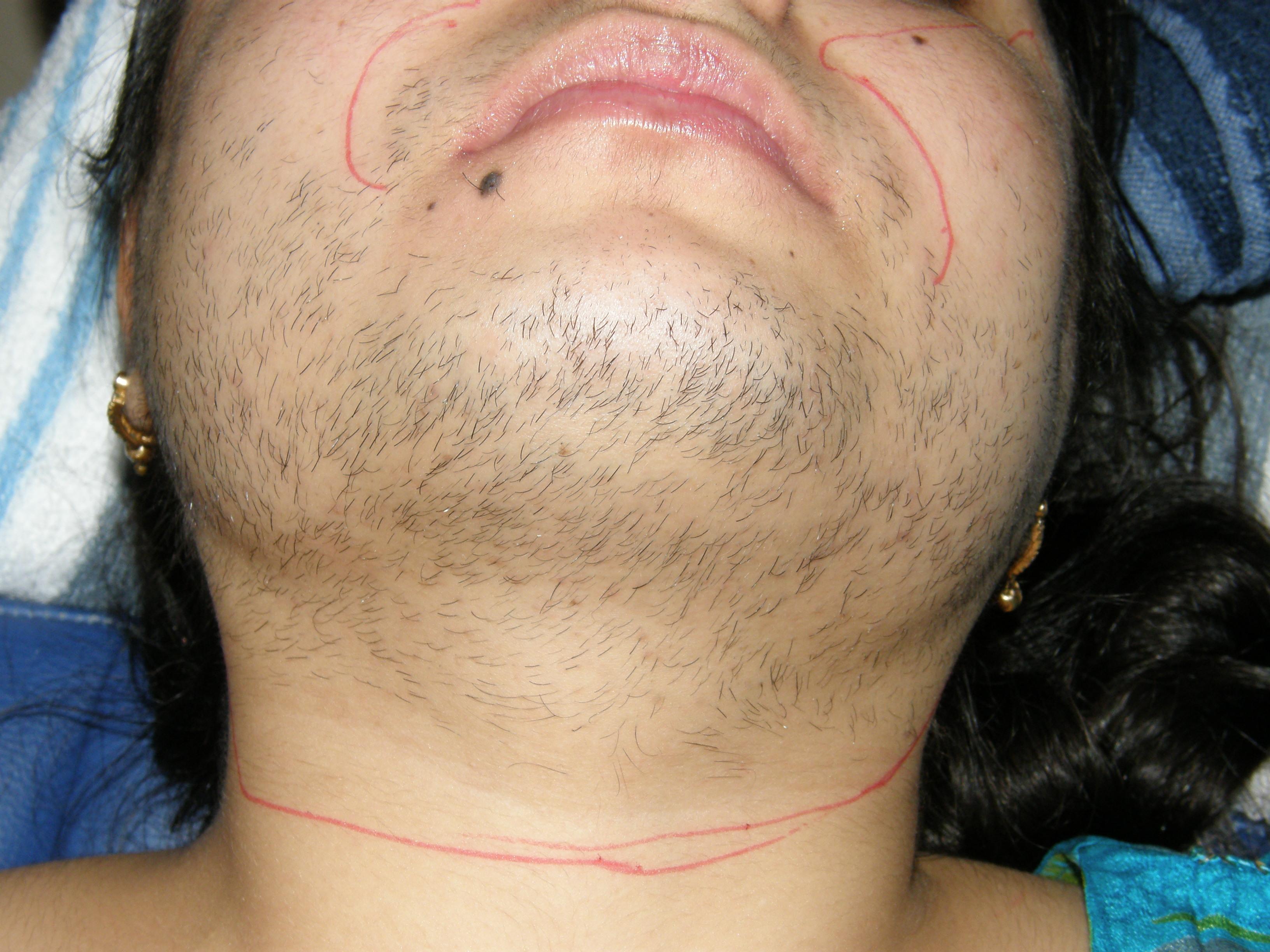 Authoritative cause excessive facial hair sorry